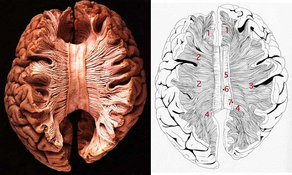 Cerebrum, Corpus Callosum And the Pineal-Pituitary/Hypothalamic Axis